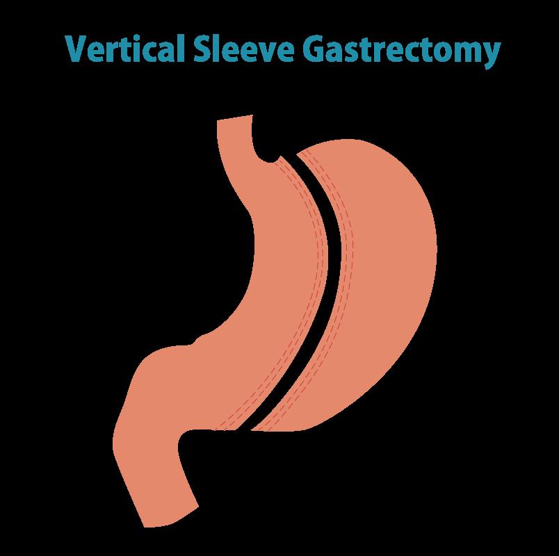 腹腔鏡下スリーブ状胃切除術