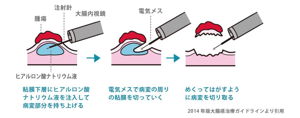内視鏡的粘膜下層剥離術(ESD)