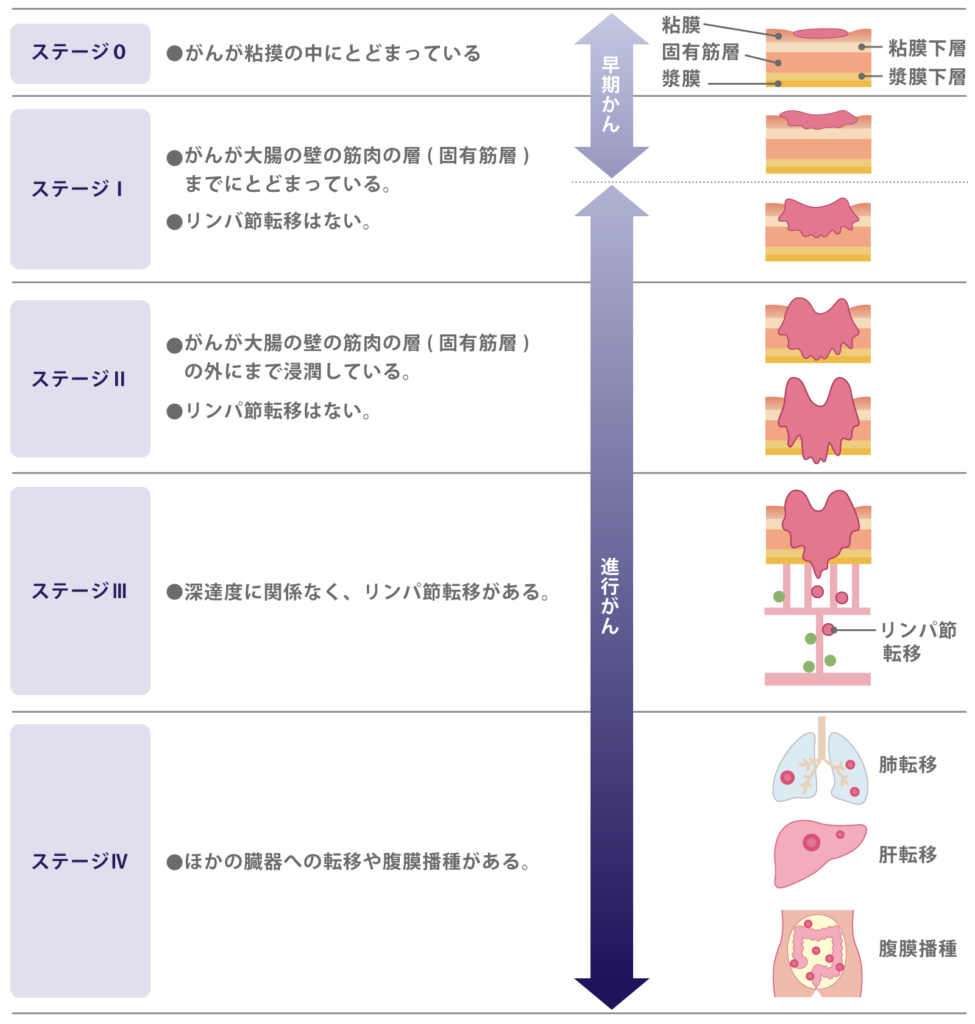 大腸がんの病期(ステージ)