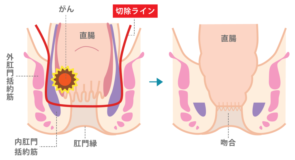 ISR(括約筋間直腸切除術)図