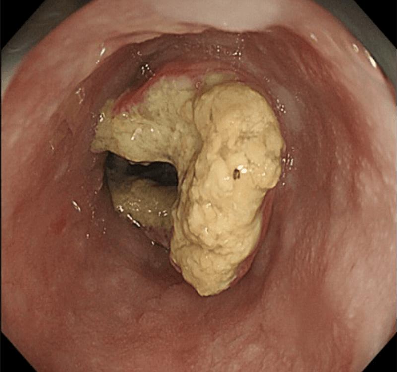 治療前の上部消化管内視鏡