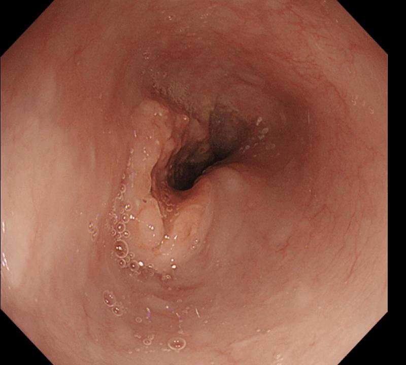 化学放射線療法後の上部消化管内視鏡 食道がんは縮小