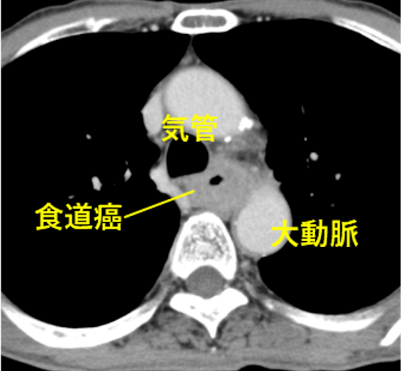 治療前のCT画像 矢印の部位で気管浸潤を認める