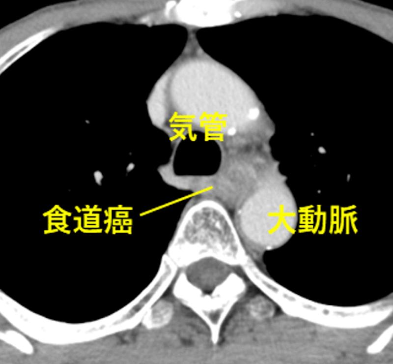 化学放射線療法後のCT画像 食道がんは縮小し気管浸潤は解除
