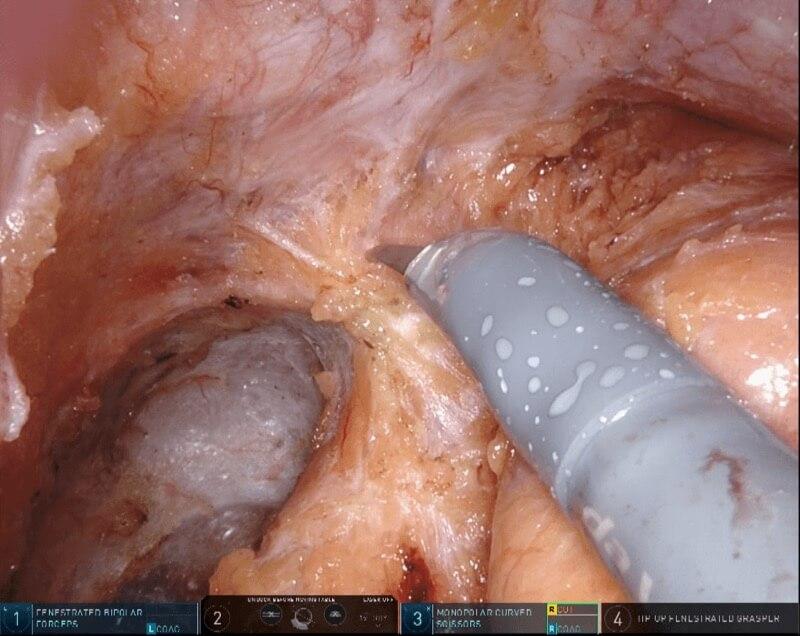 直腸がんに対するロボット手術(ダビンチ・da Vinci)4