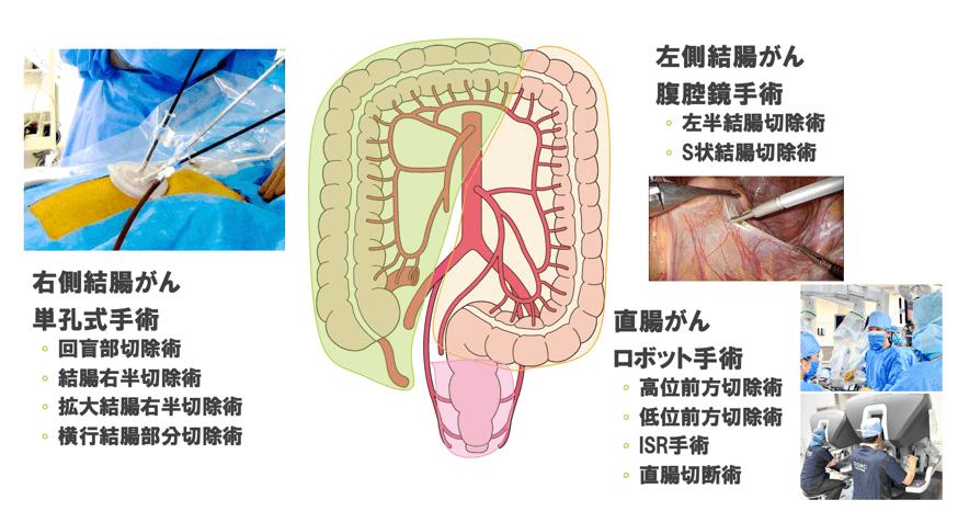大阪急性期・総合医療センターの大腸癌治療の術式アプローチ