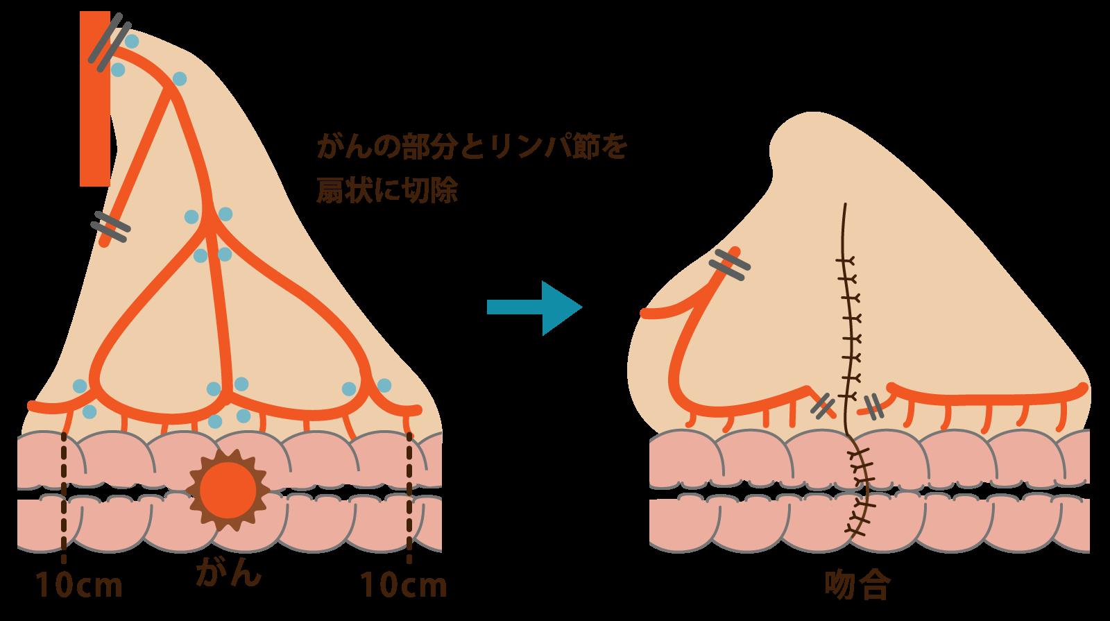癌の部分とリンパ節を扇状に切除