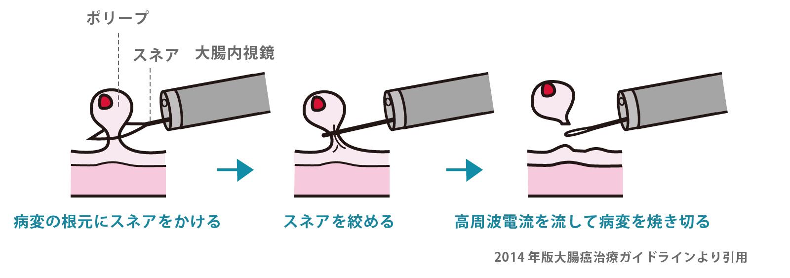 内視鏡的ポリープ切除術(ポリペクトミー)